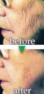 before-after03