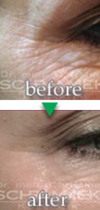 before-after05